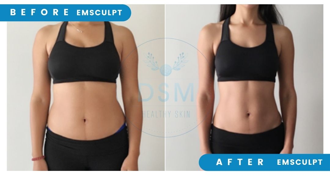 women stomach before and after